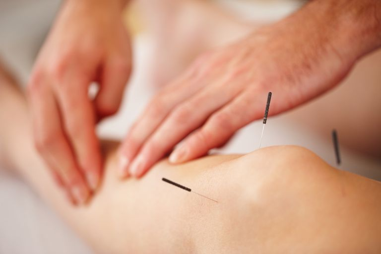 acupuncture-canada-ontario