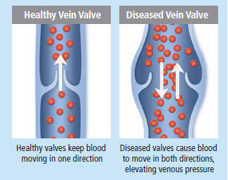 diseased-vein-valve