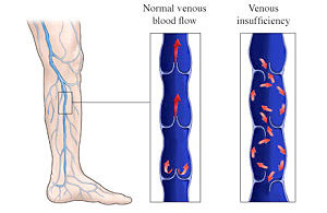 venous-insuficiency